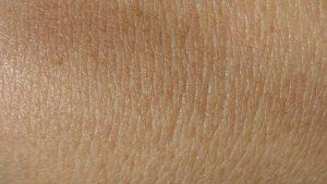 principales-causas-de-la-falta-de-pigmento-de-la-piel-1920